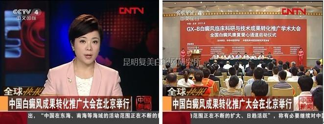 CCTV4报道:白癜风成果转化推广大会在北京举行